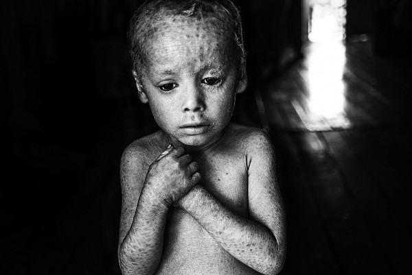 12-07-2014, Alicia Baja- Colonia Aurora, Province of Misiones Lucas Techeira is three years old and he was born with ichthyosis, a skin disorder that causes the skin to be dry and cracked. He is locally known as the crystal boy. His father Arnoldo left his job at the tobacco fields when his son was born. 32-year-old Rosana Gaspar, Lucas's mother, says that she always manipulated glyphosate at home to use in her vegetable garden.  07-12-2014, Alicia baja- Colonia Aurora, Misiones Lucas Techeira tiene tres años y nació con Ictiosis, una afección que resquebraja la piel. Comúnmente se lo conoce como niño cristal. Su padre Arnoldo tuvo que abandonar  su trabajo en las plantaciones de tabaco  cuando nació su hijo. Su madre, Rosana Gaspar de 32 años, manipuló sin protección glifosato en su huerta durante el embarazo.